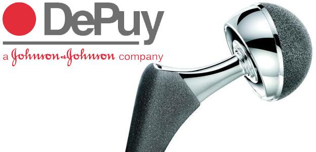 Hip implant lawsuit