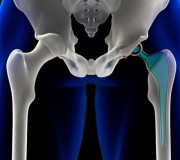 Metal Hip Implant Lawsuit