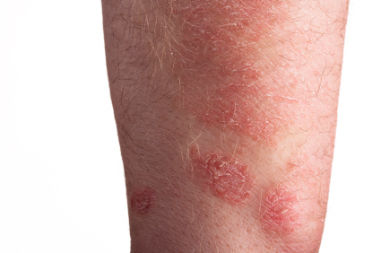 Is an itchy rash part of Sjogren's Syndrome?
