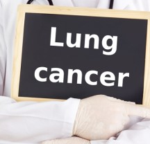 Doctor shows information on blackboard: lung cancer